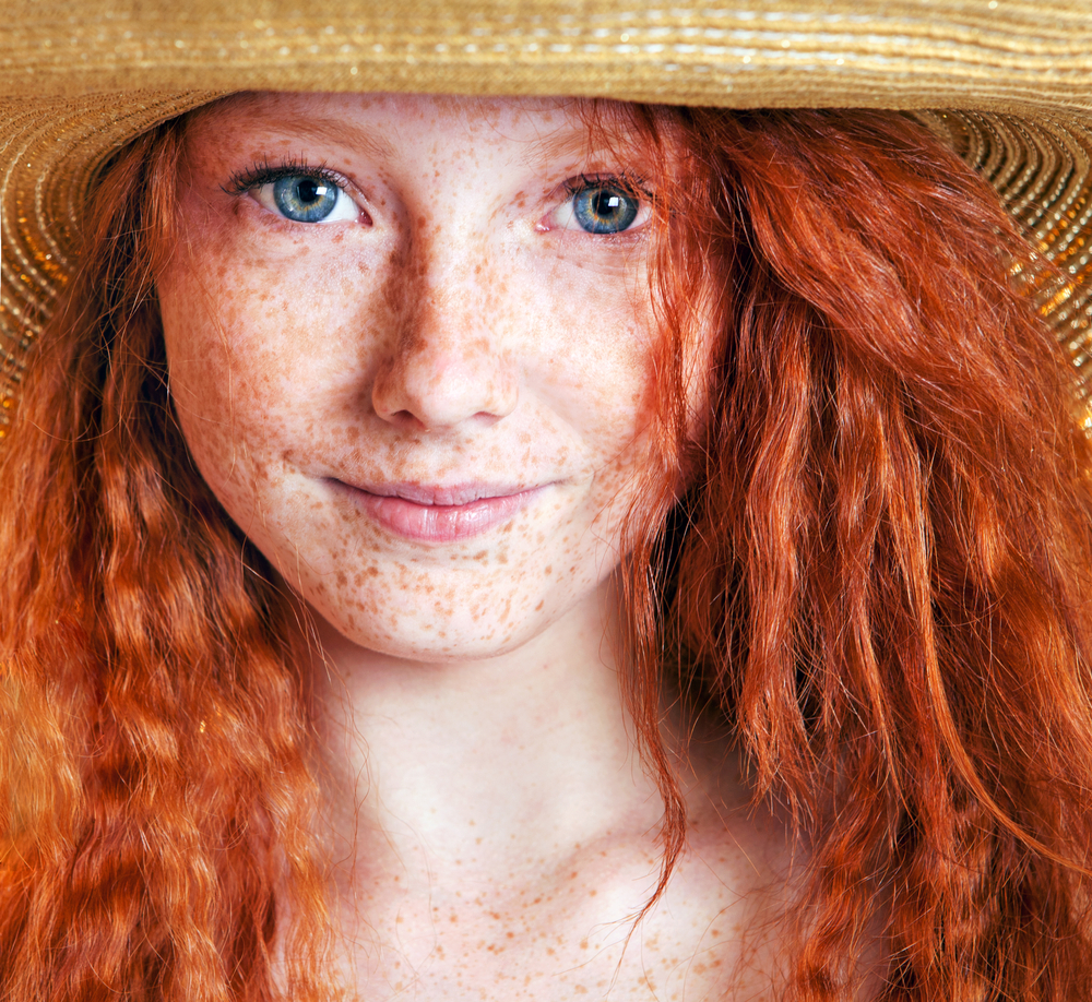 attn redheads and blonds: no sun needed for skin cancer risk