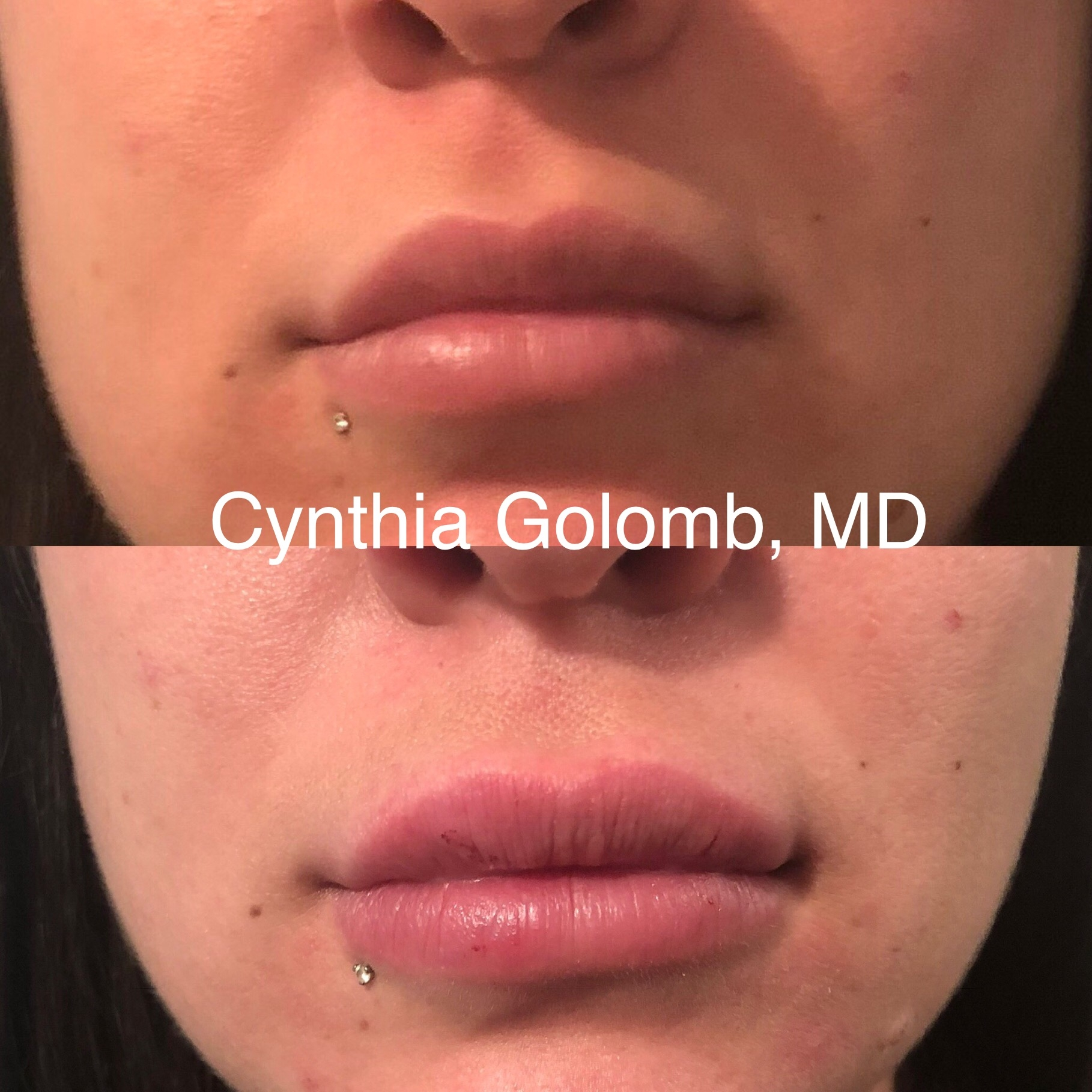Before & After – Cynthia Golomb, MD | Dermatology Boutique