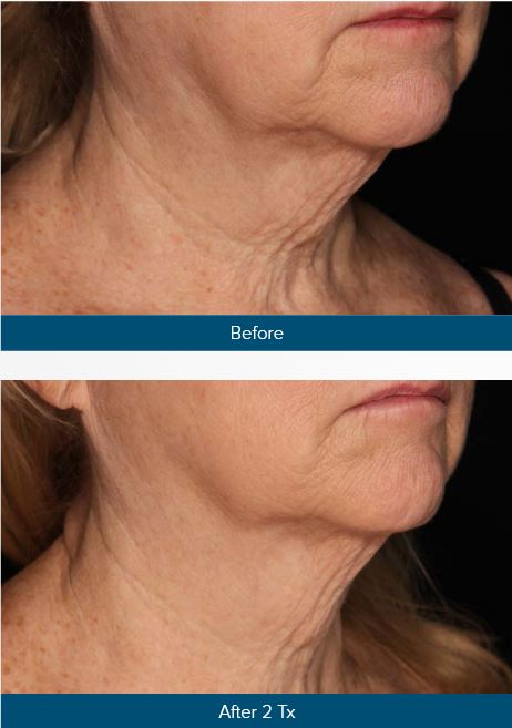 Genius Skin Tightening – Cynthia Golomb, MD | Dermatology