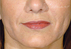 After 2mL of Restylane®